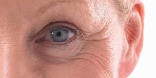 o-wrinkles-facebook